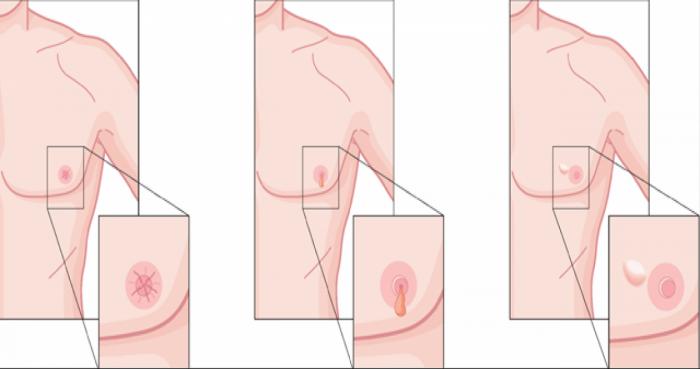 cancer mamar la barbati simptome)