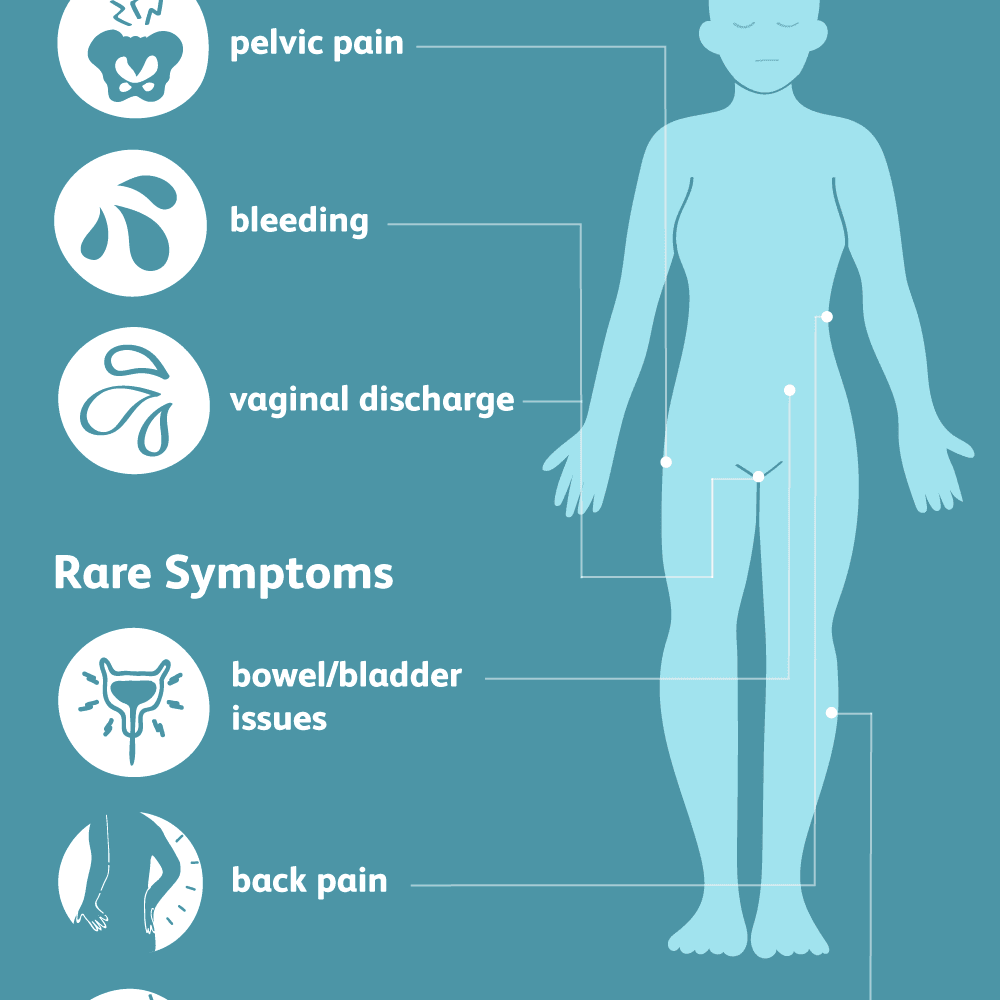 Cancer nausea abdominal pain, Cancer colon chemotherapy Desfășurăm experimente esentiale