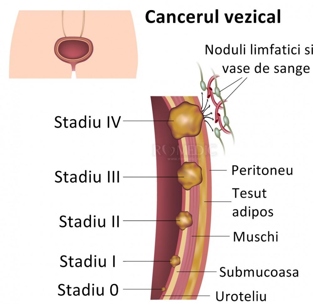 CANCERUL OVARIAN | Centru Oncologie Severin