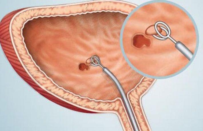 cancerul vezicii urinare simptome
