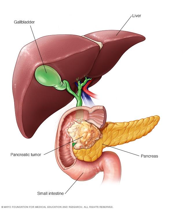ce este cancerul pancreatic)