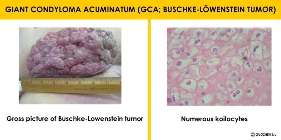 condyloma acuminatum bleeding)
