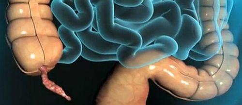 câtă vindecare după îndepărtarea condilomului care medicament antihelmintic este mai bun