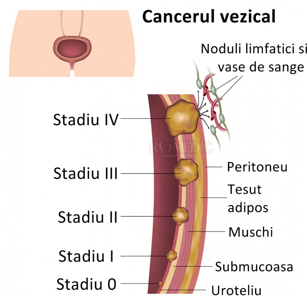 cancer ovarian malign