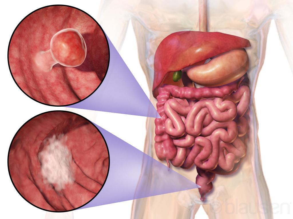 cancer colon sau colorectal)