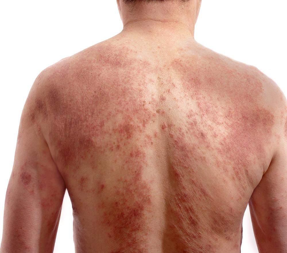 dermatite cronica)