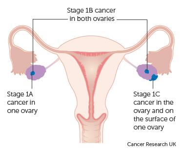 ovarian cancer treatments)