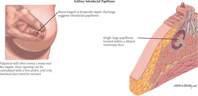 ductal papilloma nipple