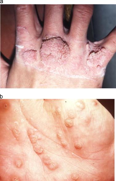 hpv symptoms finger)