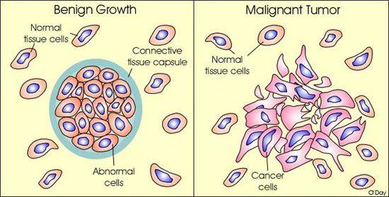 cancer malign sau benign