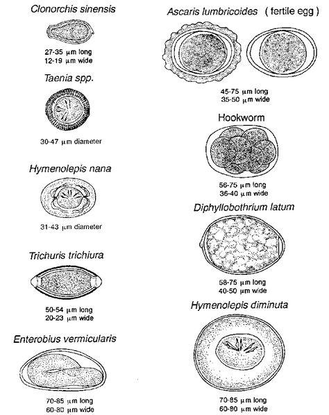 Enterobius vermicularis cdc dpdx - anvelope-janteauto.ro, Enterobius vermicularis cdc dpdx