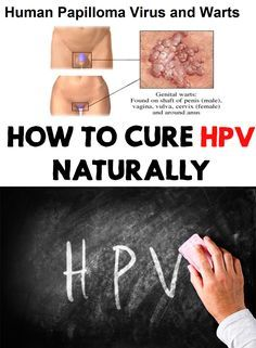 how to cure human papilloma virus