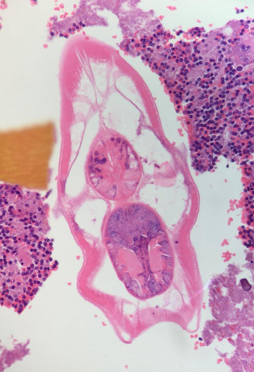 enterobius vermicularis histopathology dieta pentru eliminarea paraziților din organism