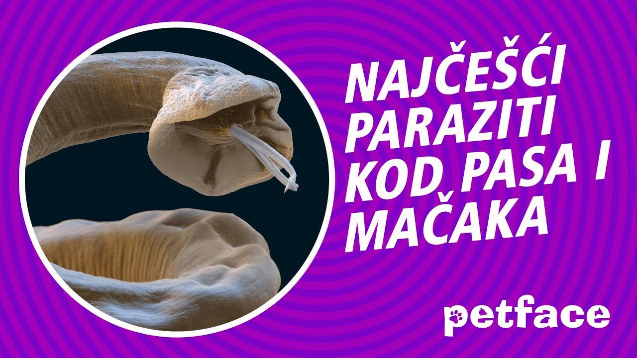 examinarea parazitului în budapest)