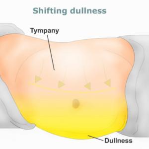 cancer in abdominal fat)