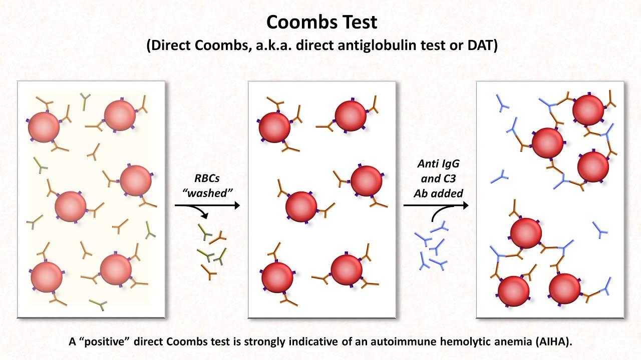 anemia 3 stopnia