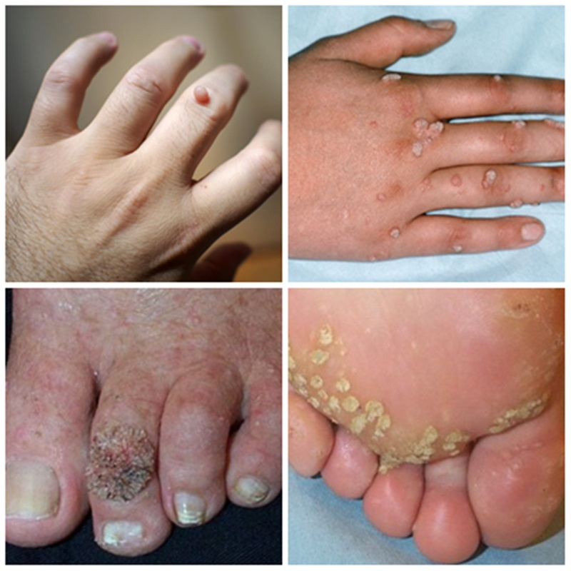 Foot wart alternative treatment, homeo materia medica, Foot warts homeopathic remedy