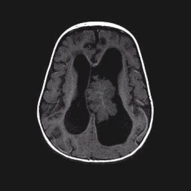 Down syndrome Choroid plexus papilloma neonatal