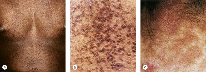 confluent and reticulated papillomatosis icd)