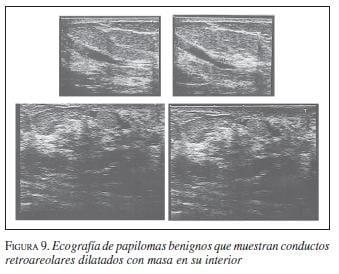 Papiloma intraductal de la mama. Papiloma pe cap în păr provoacă tratament