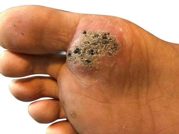 foot warts with black spots