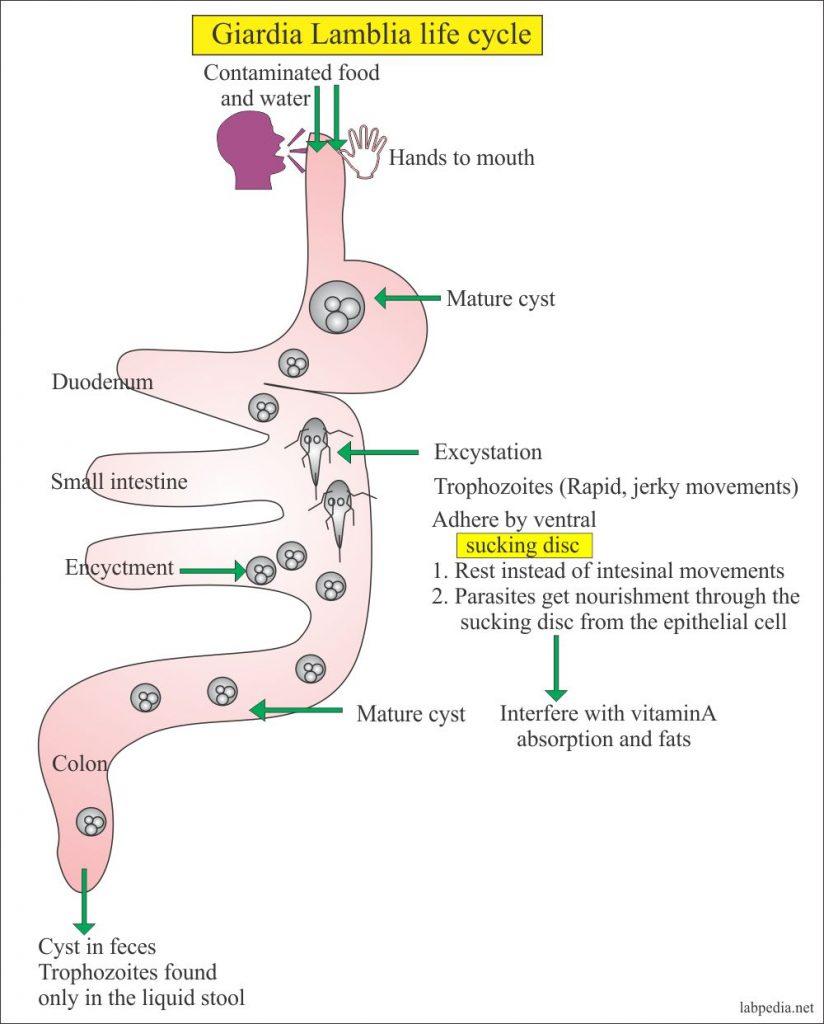 giardia intestinalis disease