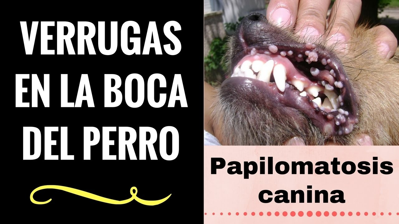 laryngeal papillomatosis steroids helminth infection th2