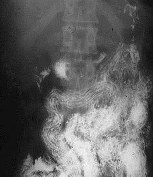 helminth disease
