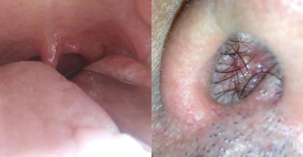 hpv lingua sintomi