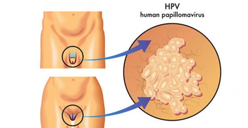 Papilloma virus umano e pericoloso Oxiuros mujeres Vaccino papilloma virus e pericoloso