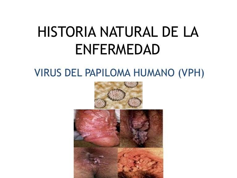 hpv que es enfermedad)