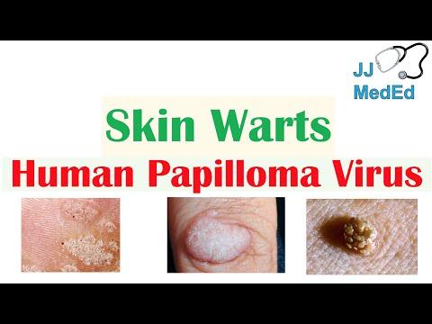 Hpv virus test iz krvi Profil virus herpes simplex (HSV1, HSV2)-Anticorpi IgM