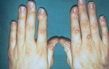 hpv virus warts on hands)