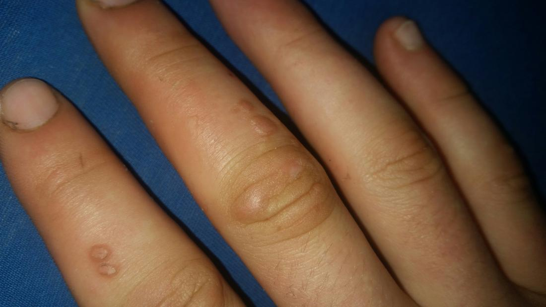 Hpv wart in finger