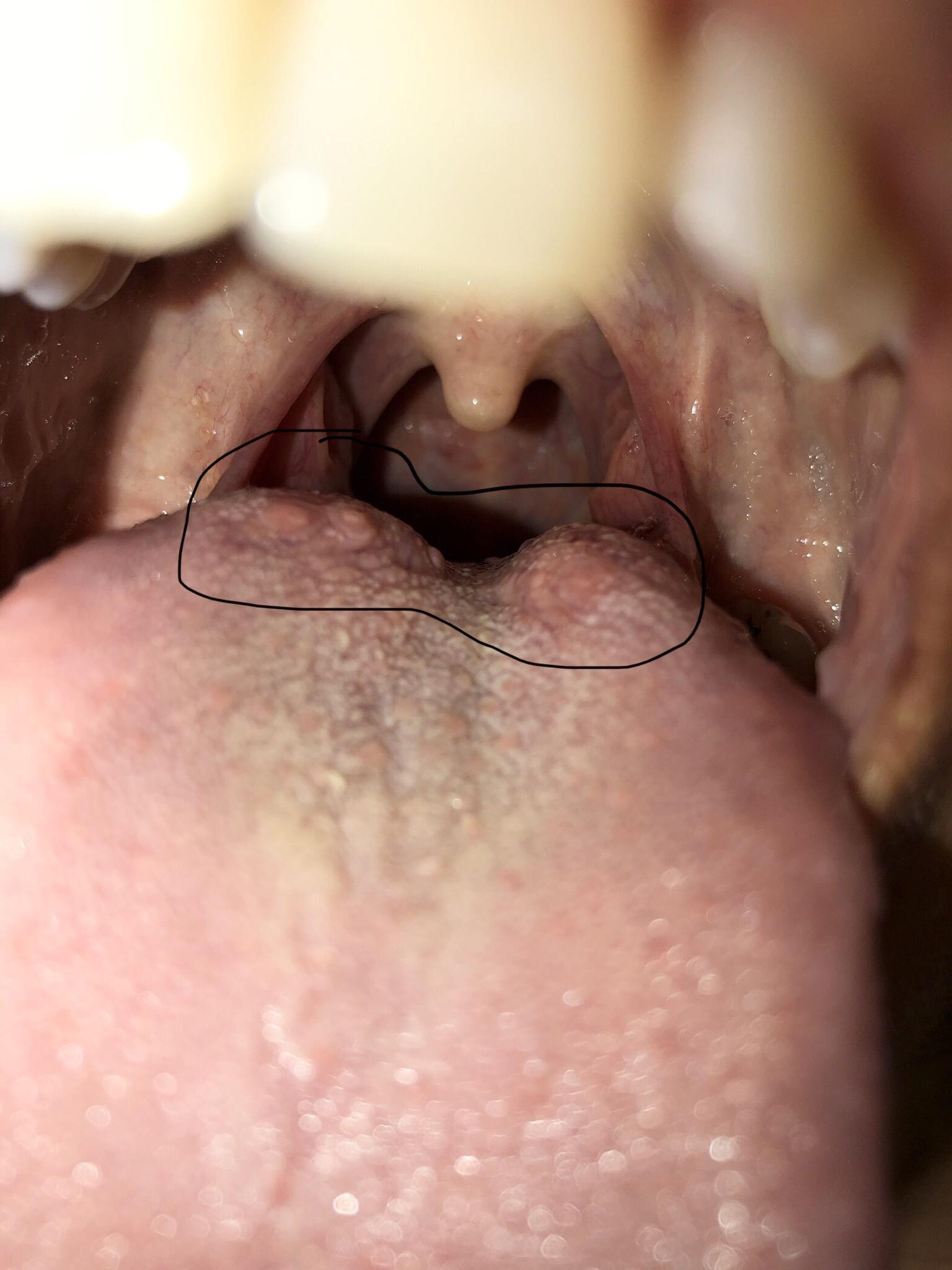 Hpv cancer back of tongue Înțelesul
