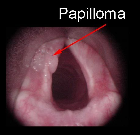 human laryngeal papilloma