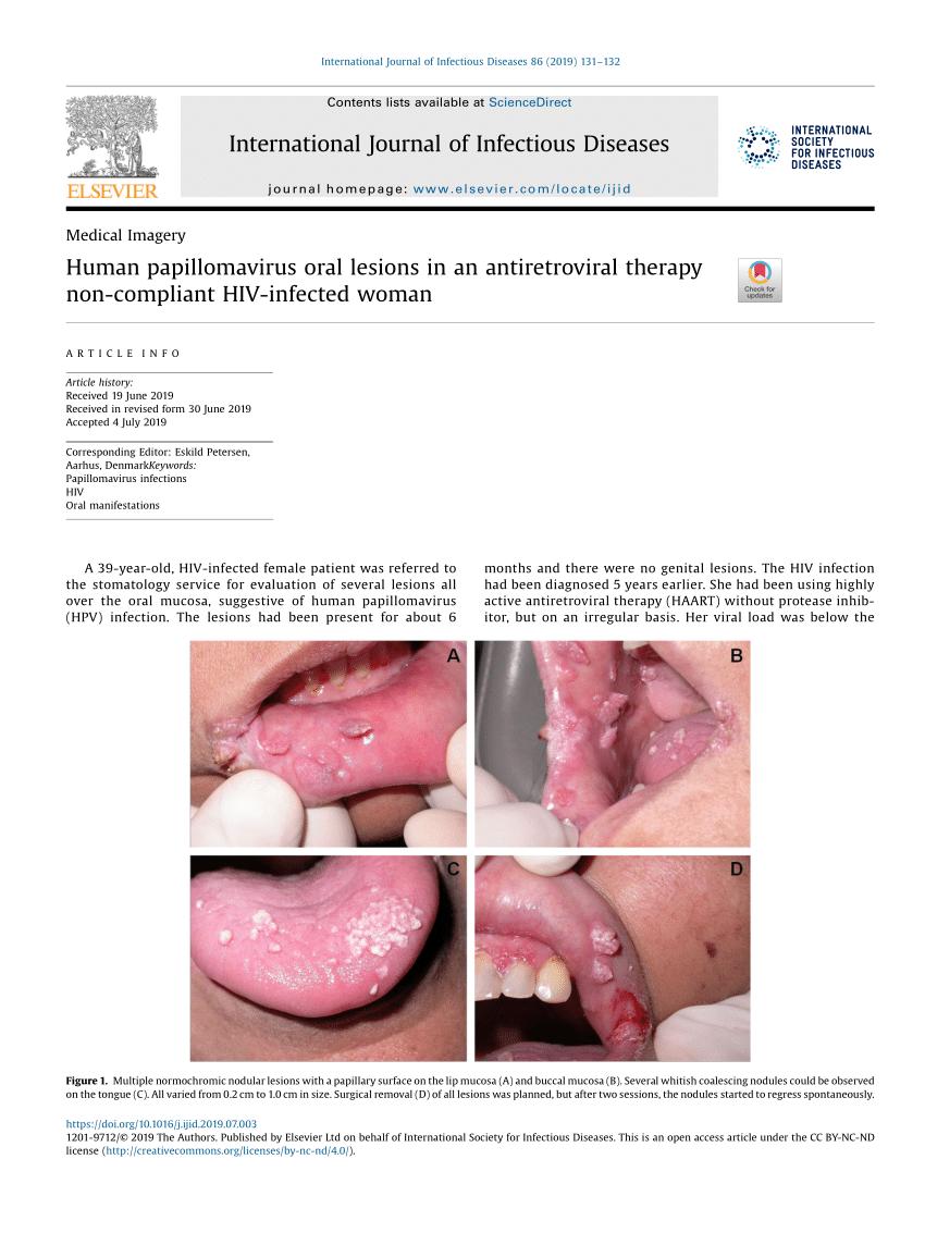 human papilloma lesion)