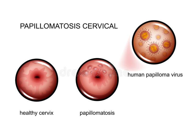 human papilloma papillomatosis