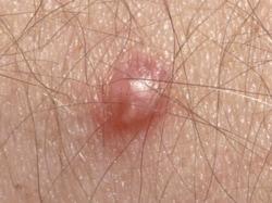 human papilloma virus in male
