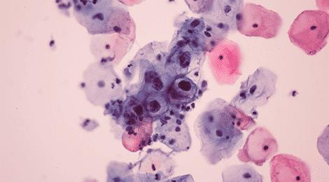 Define human papillomavirus (hpv). Înțelesul