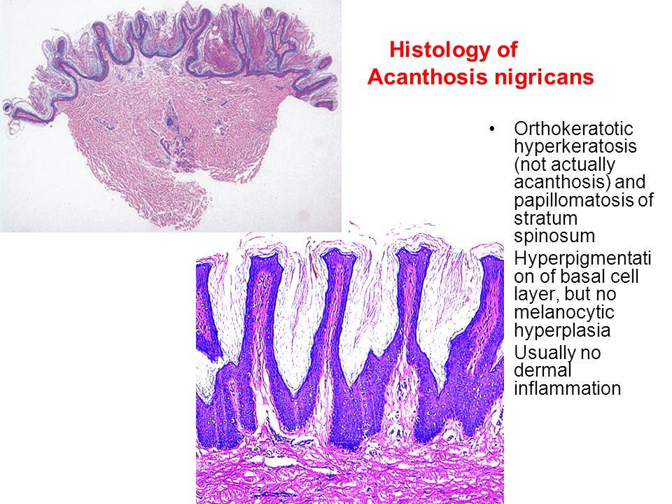 hyperkeratosis papillomatosis and acanthosis