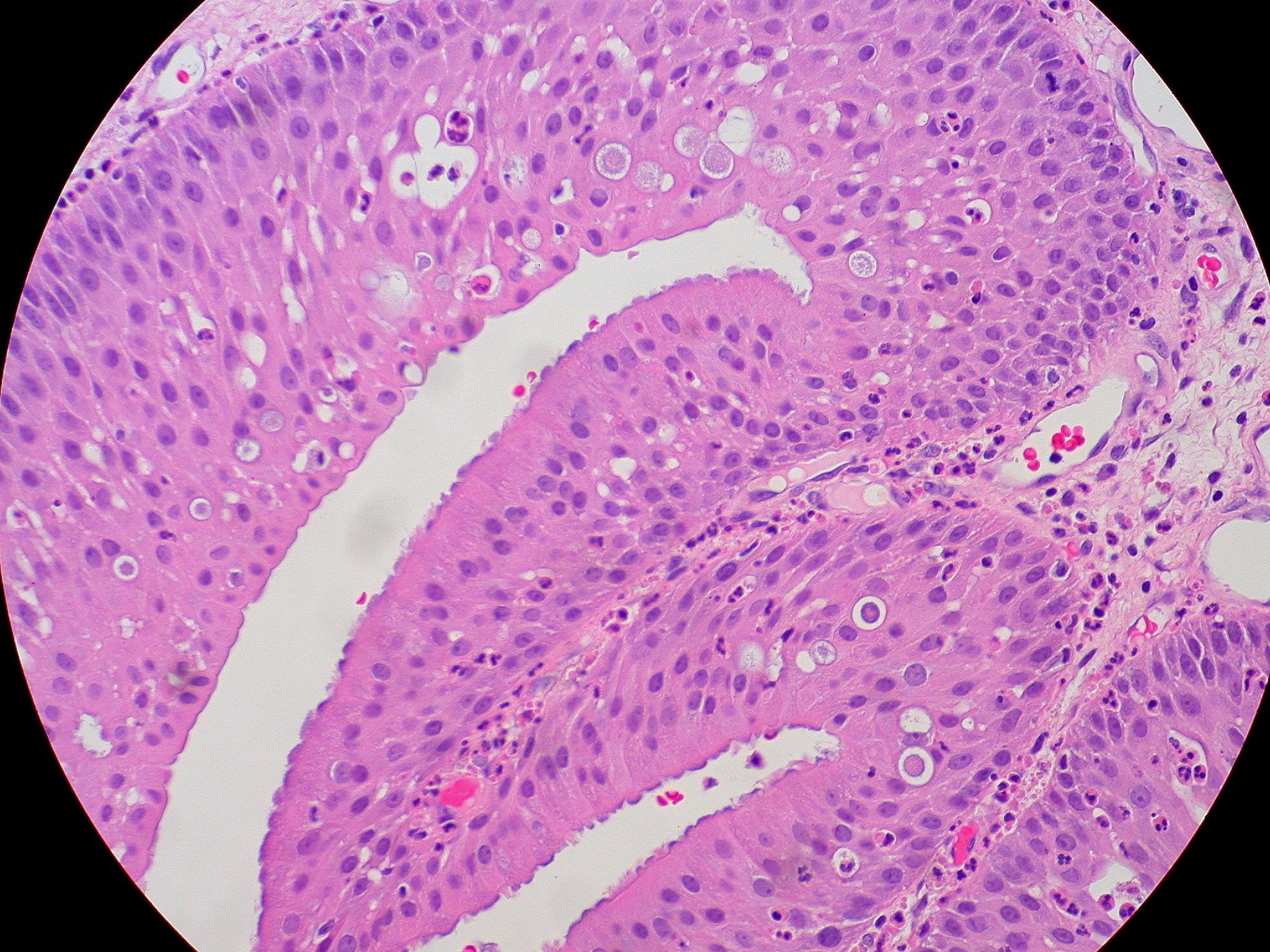 Nasal papilloma mri. Papilloma on nasal septum