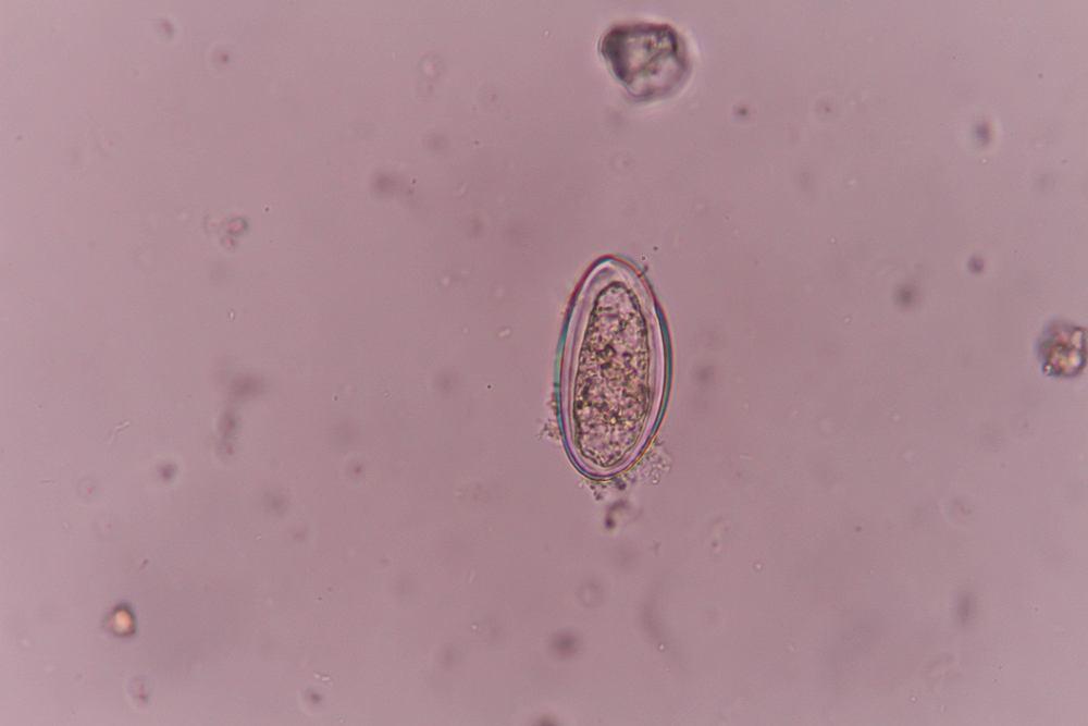 jaja enterobius vermicularis leczenie)