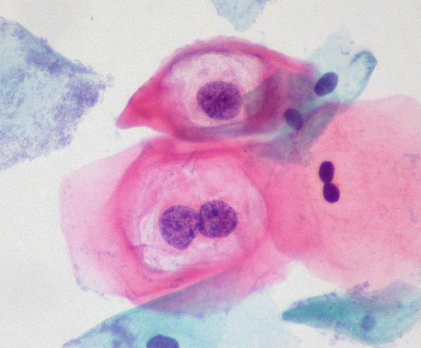 ovule he papillomavirus
