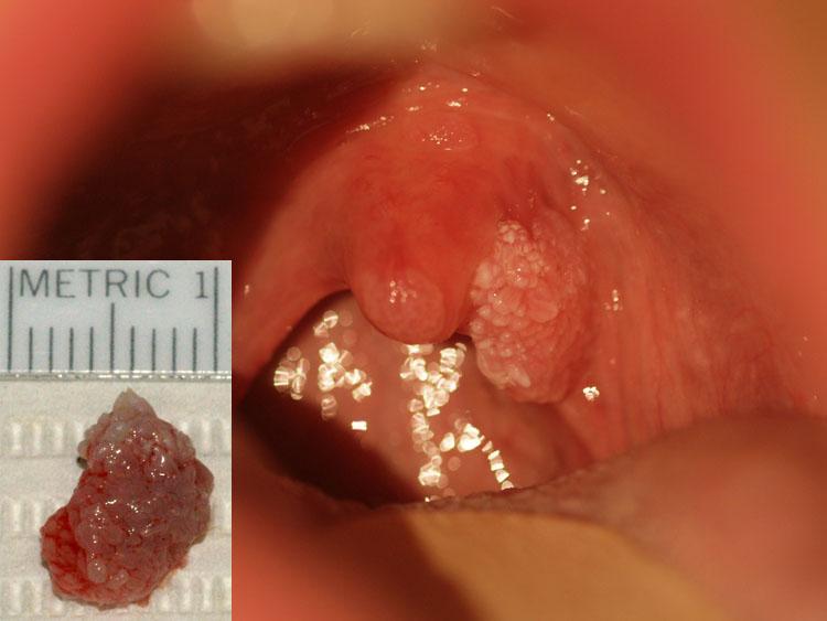 papilloma from uvula