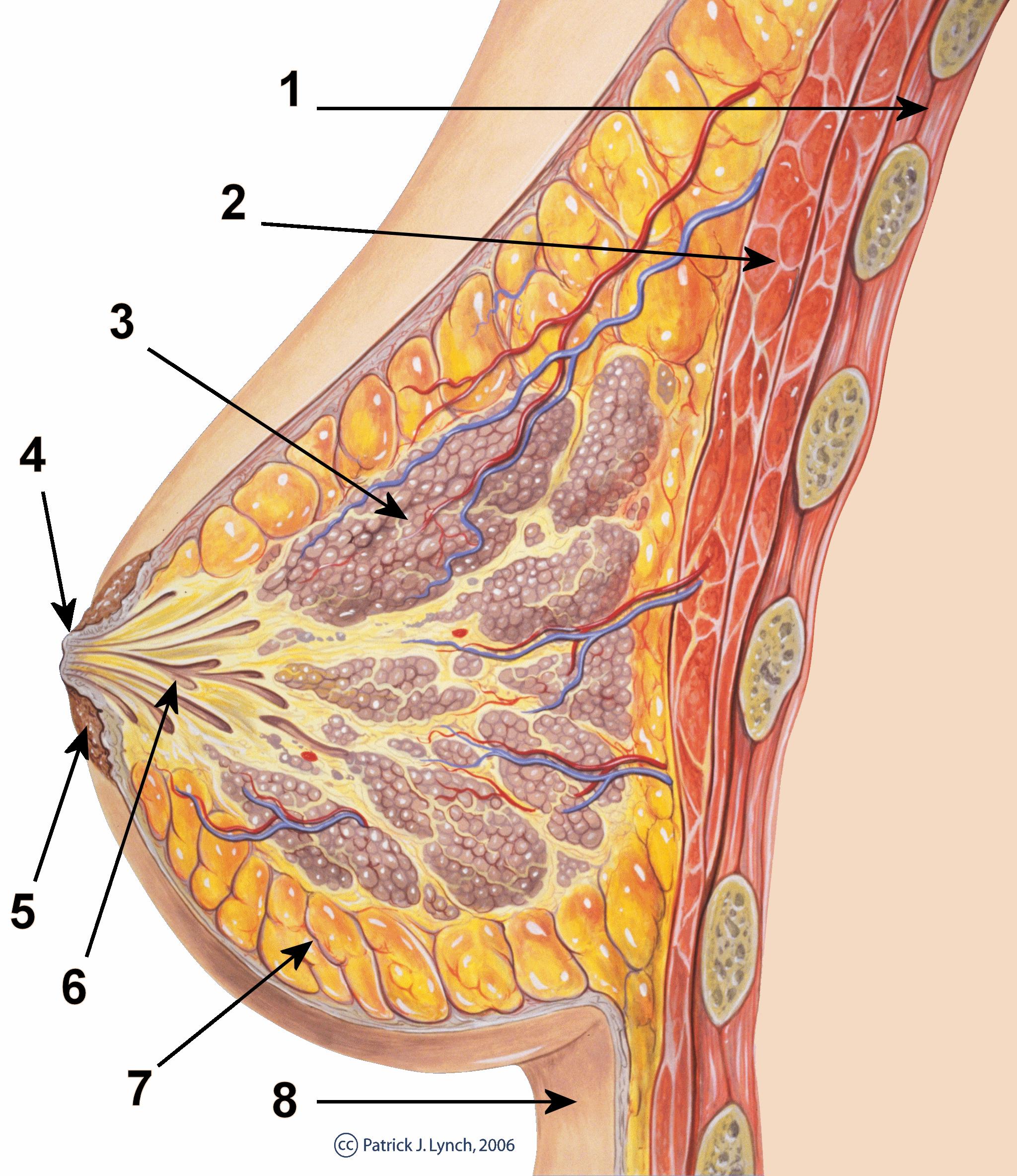Seno papilloma intraduttale - Papilloma intraduttale asportazione