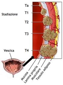 papilloma vescicale g3