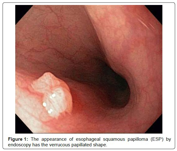 papilloma virus esophagus