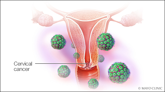 papilloma virus transmitere