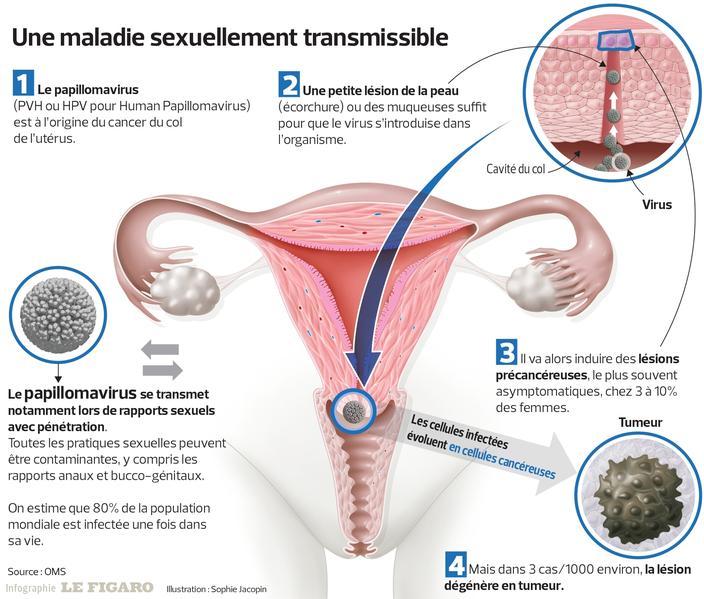 Papillomavirus homme sterilite